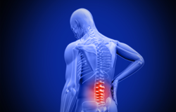 Lower Back Pain is #1 Cause of Disability